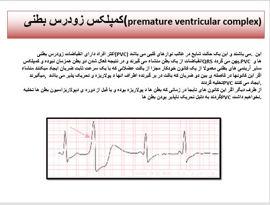 دانلود پاورپوینت تشخیص آریتمی های بطنی با استفاده از سیگنال ECG