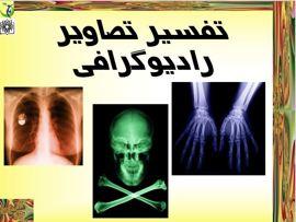 دانلود پاورپوینت تفسیر تصاویر رادیوگرافی در ۲۱۵ اسلاید قابل ویرایش